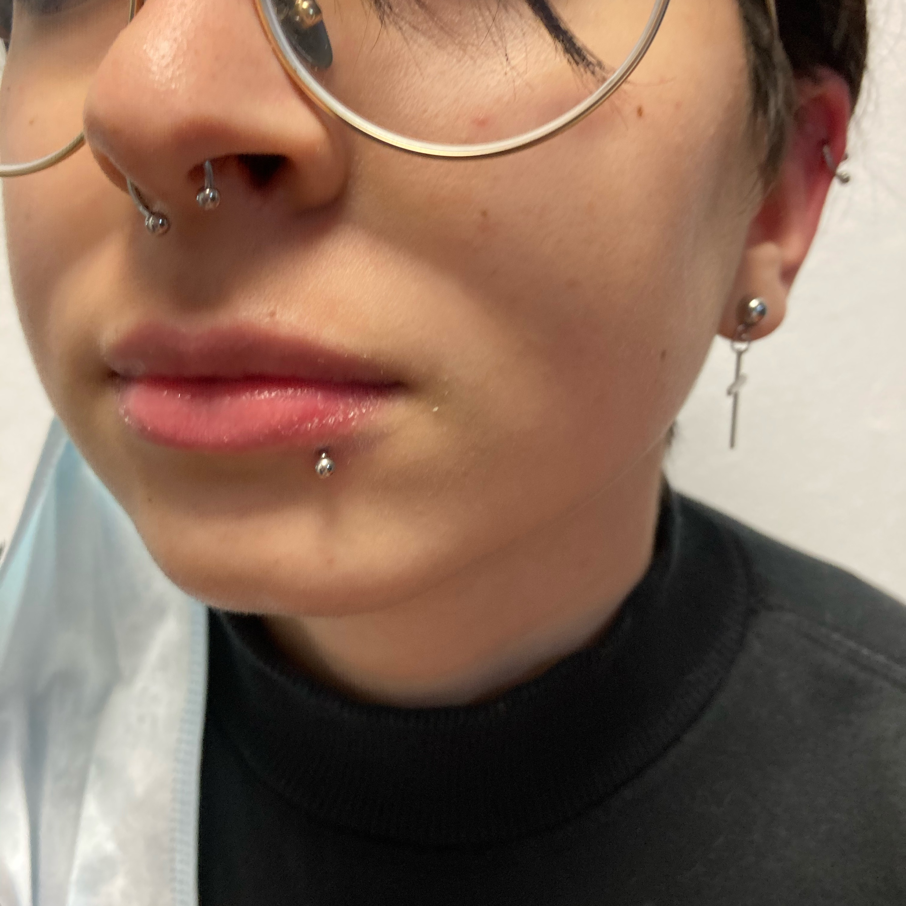 LABRET LATERAL